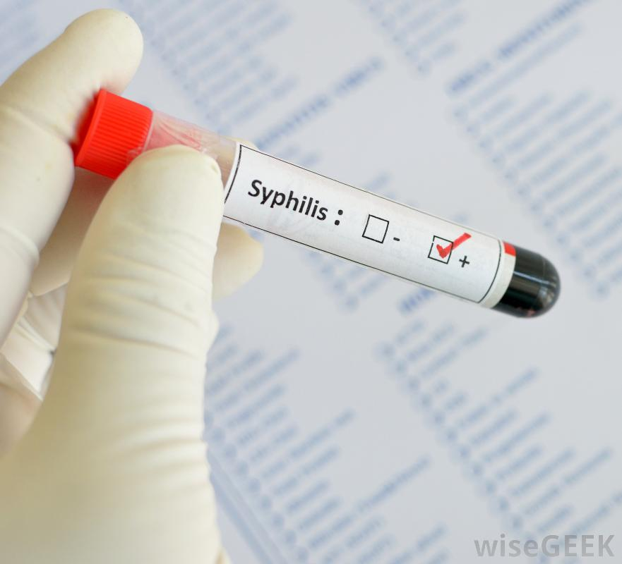 blood-test-tube-with-syphilis-indicated